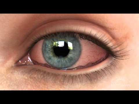 Conjunctivochalasis (CCH) Dry Eye Animation