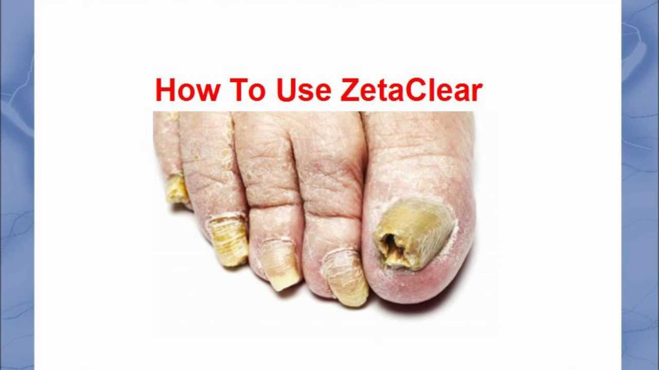 How To Use Zetaclear Find Out How To Use Zetaclear Here Youtube