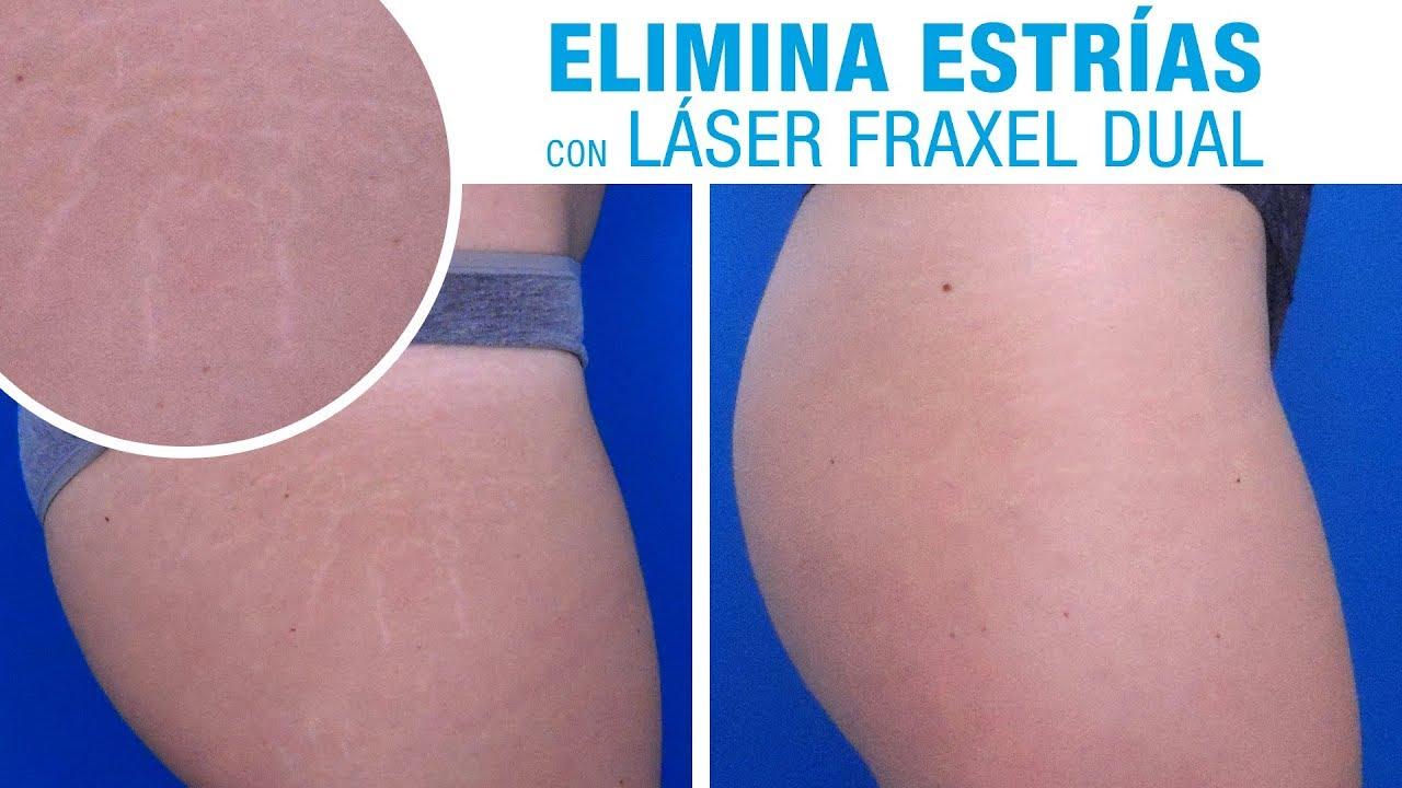Cuanto cuesta una cirugia laser para quitar estrias