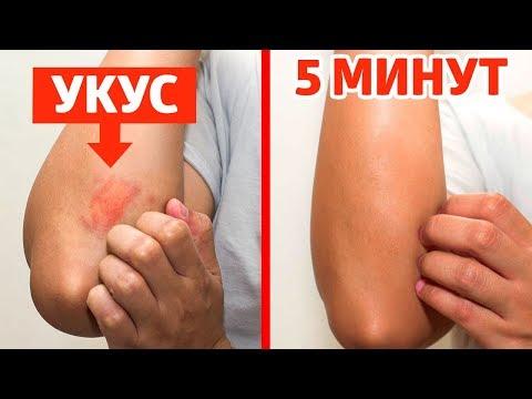 Прочь, кровососы: эффективный фумигатор от комаров всего за 10 рублей