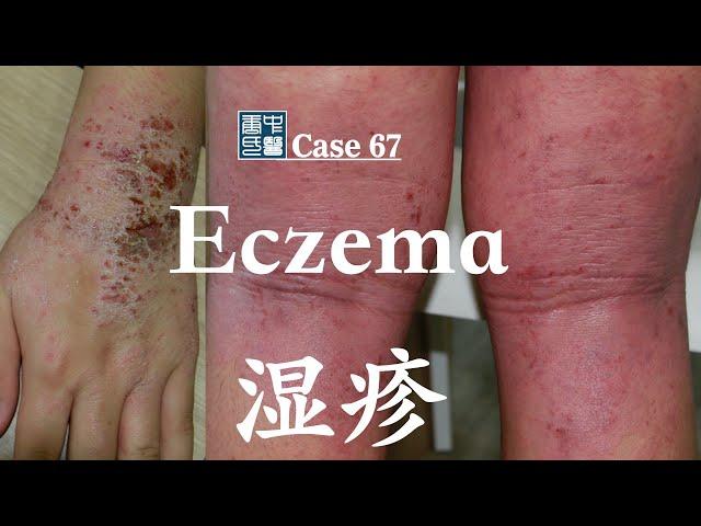 Eczema (Atopic Dermatitis)  湿疹(特异性皮炎)