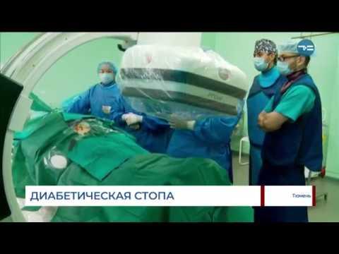 Диабетическая стопа | здравоохранение | тюменское | операция | медицина | тюмень | время | tyumentime | окб_1 | тсн | окб