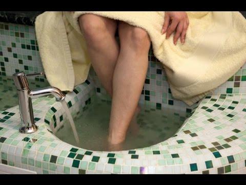 Как снять опухоль с ноги после перелома в домашних условиях