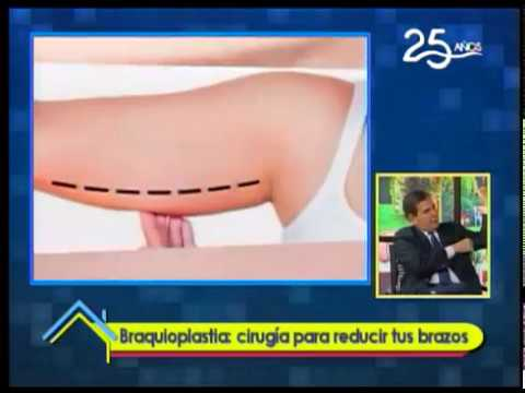 Braquioplastia: Cirugía para reducir tus brazos