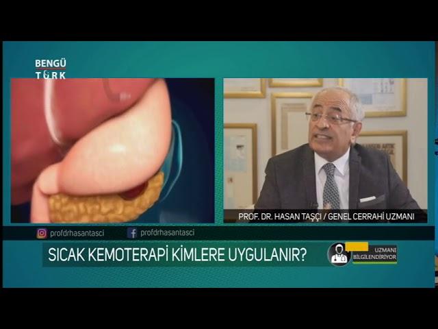 Mide Kanserinin Belirtileri Nelerdir? Prof. Dr. Hasan Taşçı bilgilendiriyor...