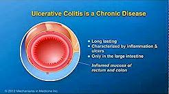 hqdefault - Ulcerative Colitis Kidney Infection