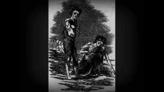Steel Hook Prostheses - Famine