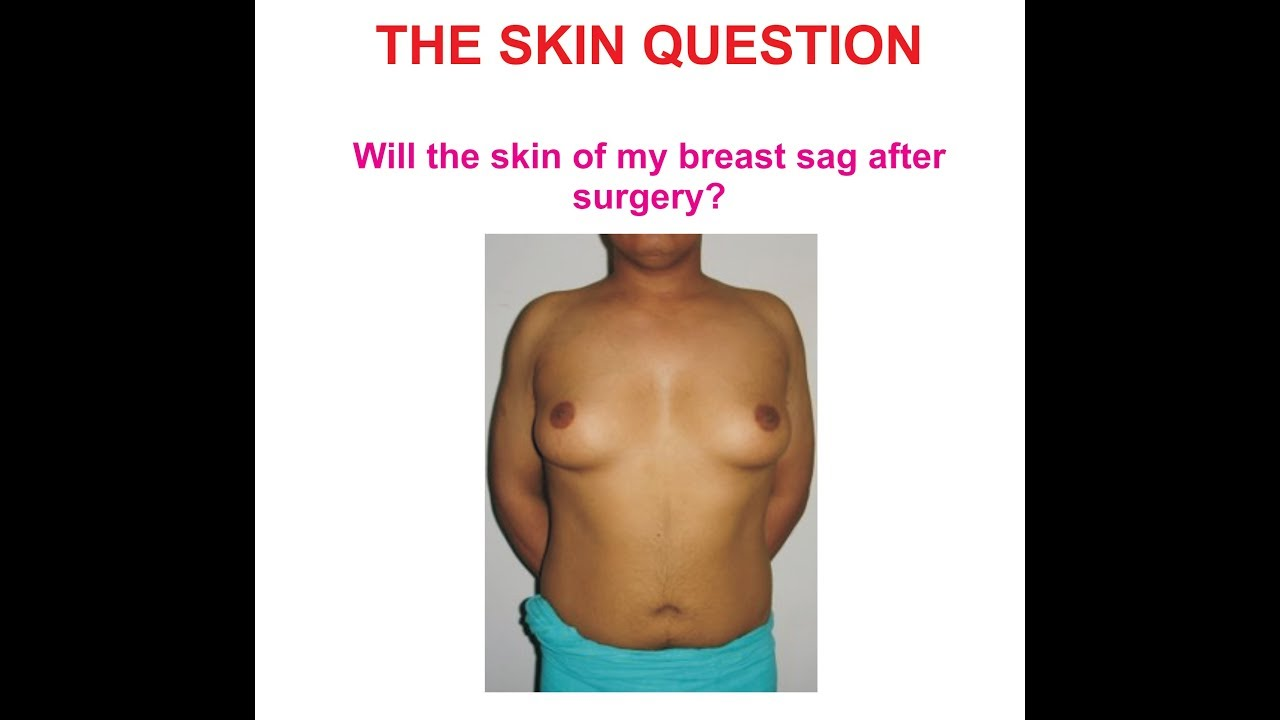 Dr ratti vital clinic delhi india male breast surgery