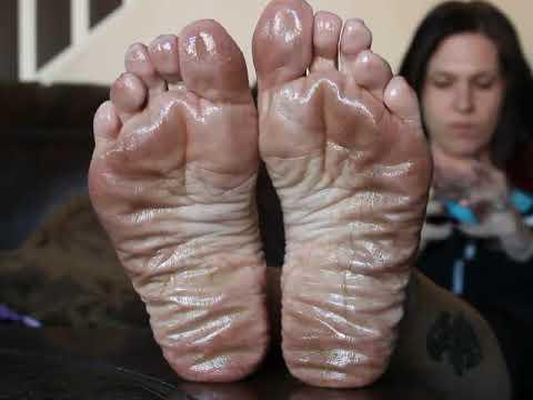 Oily soles