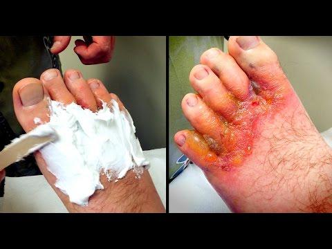 HORRIBLE FOOT RASH: Wound Care   Dr. Paul
