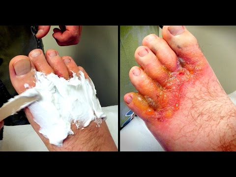 HORRIBLE FOOT RASH: Wound Care | Dr. Paul