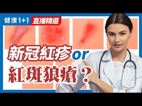 新冠紅疹類似哪種免疫失調的疾病?  健康1+1