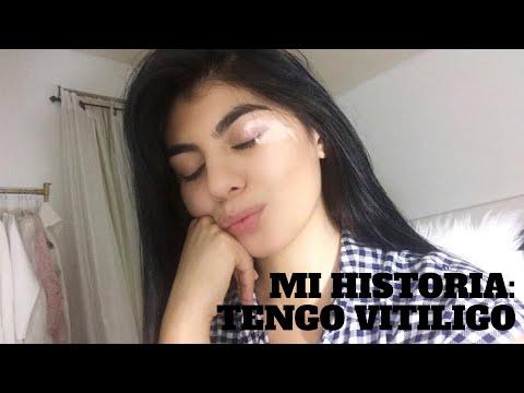 Mi historia: Tengo Vitiligo
