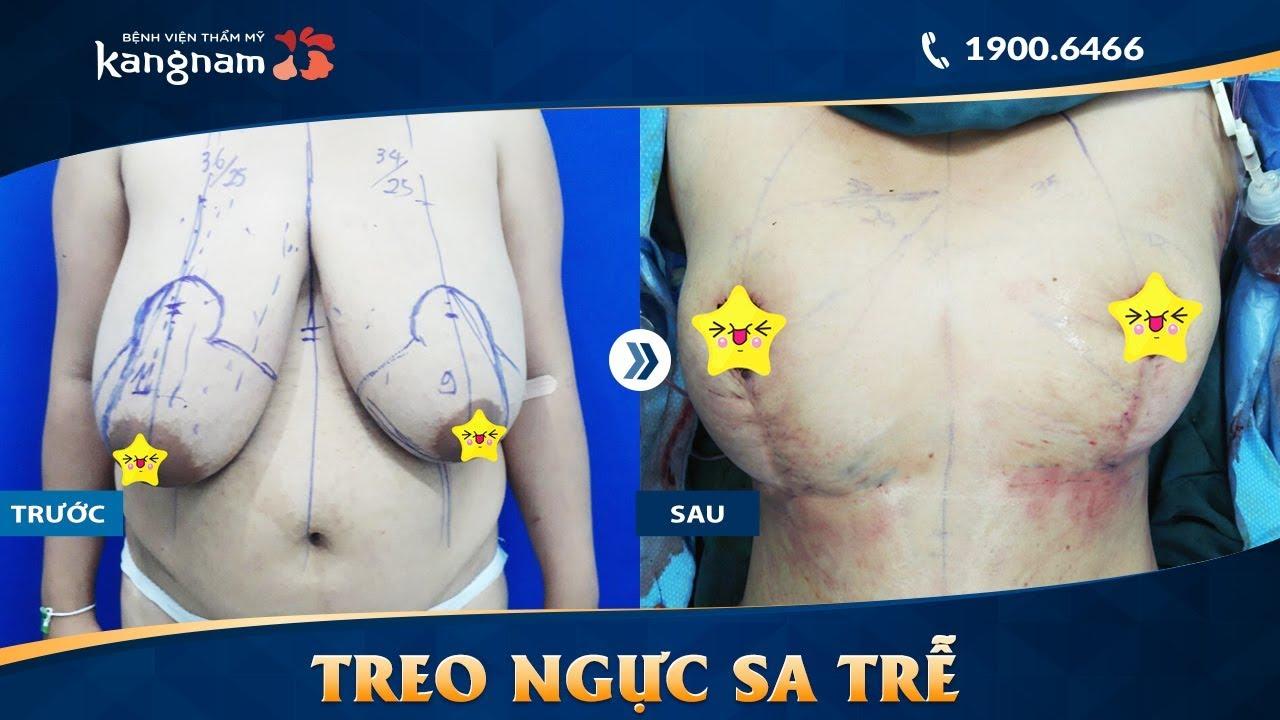 Treo ngực sa trễ là gì? BVTM Kangnam