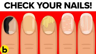 8 Things Your Nails Can Tell You About Your Health
