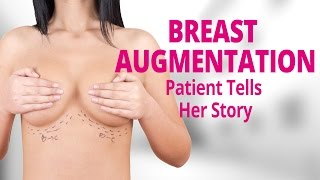 Breast Augmentation Patient Tells Her Story | Edelstein Cosmetic Thumbnail