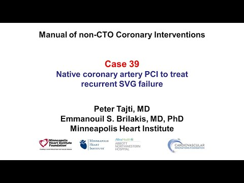 Case 39: Manual of non-CTO coronary interventions: Native instead of SVG PCI