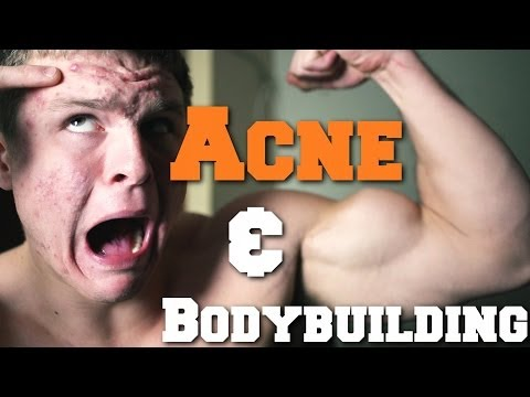 How To Get Rid Of Acne As Bodybuilder
