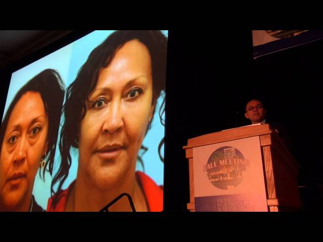 Rejuvenation of the Ethnic (African, Asian, Hispanic) Midface by Dr. Sam Lam