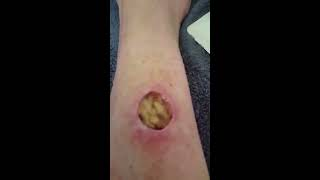 Manuka honey on open wound after squamouscell carcinoma surgery