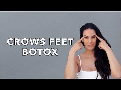 Botox for Crow's Feet | Nazarian Plastic Surgery
