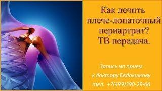 Плечелопаточный периартрит лечение остеопатией
