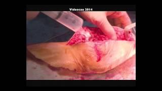 Prothèse Totale du Genou en Ambulatoire