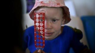 Изувеченным детям-альбиносам из Танзании сделают протезы в США (новости)