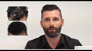 Trattamento e autotrapianto capelli: l ...