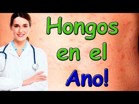 Hongos en el Ano o Recto Consulta telefónica Dra. Valeria Como Tratar el hongo del ano