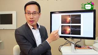 【心視台】香港眼科專科醫生 鄧維達醫生-視網膜病變