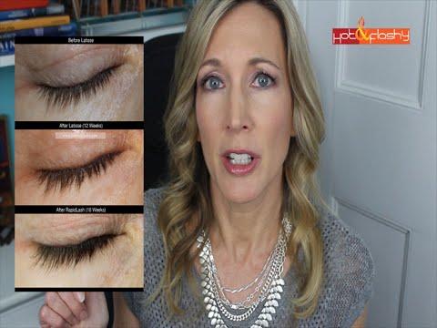 Grow Longer Lashes! RapidLash Review | Latisse Comparison