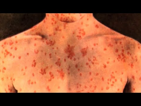 Second measles scare at Chicago airport