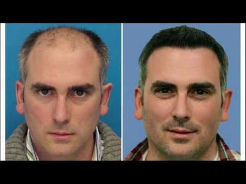 Do You Know Laser How To Reconstruct Bad Hair Transplant