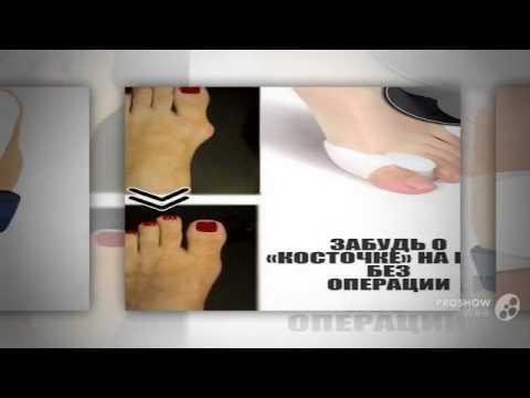 Мепиформ-Mepiform - YouTube
