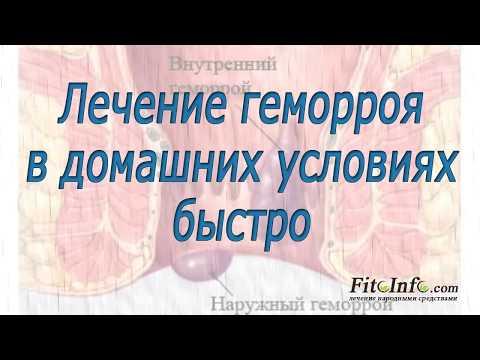 Лечение ГЕМОРРОЯ в домашних условиях быстро! Народные средства от геморроя.