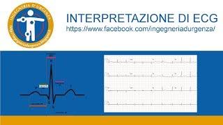 Interpretazione di ECG: leggiamo insieme qualche elettrocardiogramma.