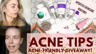 ACNE TIPS FOR CLEAR SKIN + GIVEAWAY!