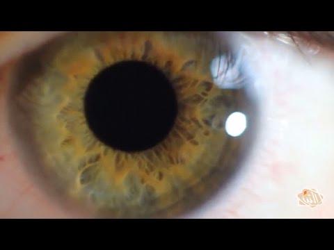 4b88a8d2d تأثير مرض السكري على شبكية العين - YouTube