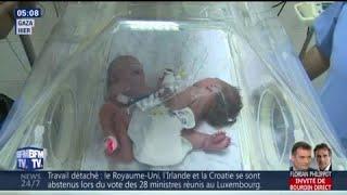 Nées à Gaza, ces sœurs siamoises doivent être opérées à l'étranger pour survivre