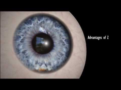 relex smile eye surgery in bangalore dating