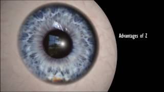 Z-Lasik - Bladeless Laser Vision Correction