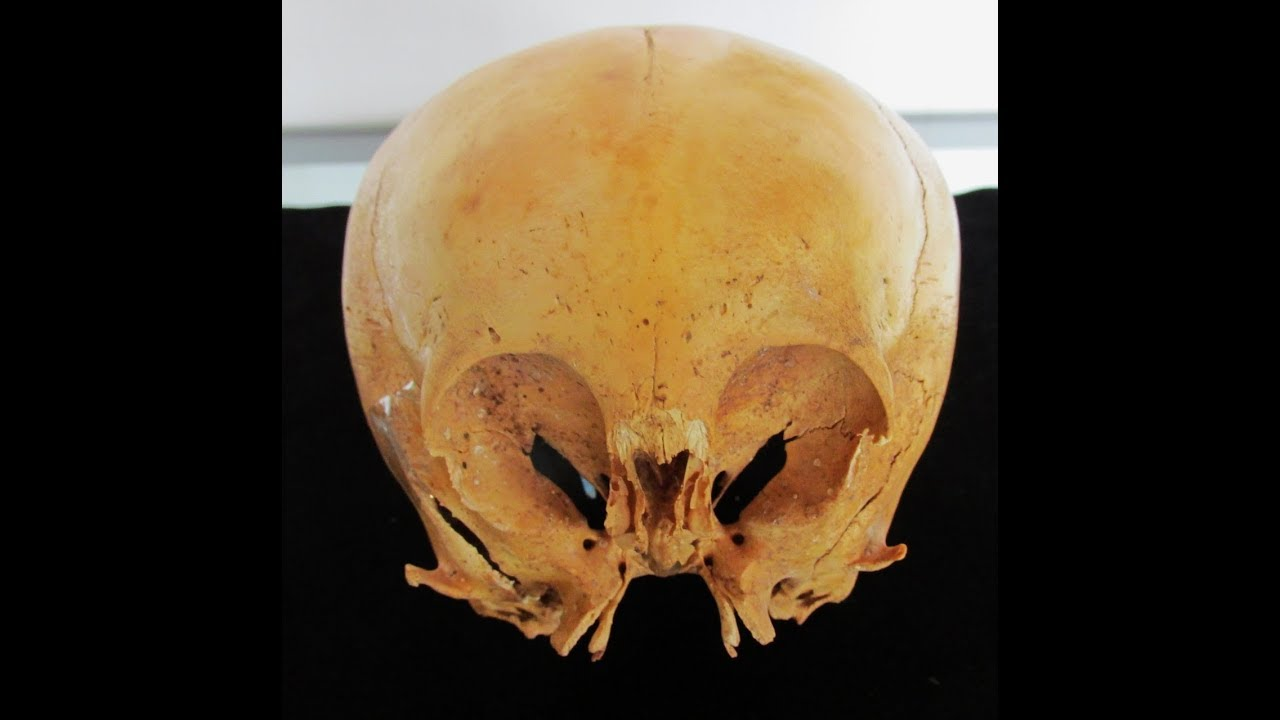The Enigmatic Ancient Humanoid Skulls Of Paracas Peru