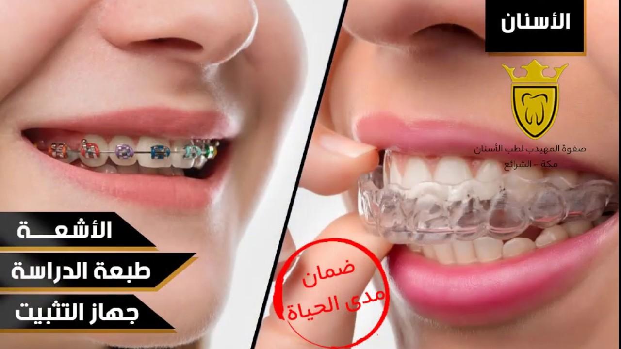 عروض نهاية الشهر من صفوة المهيدب لطب الأسنان Youtube