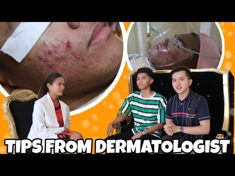 Paano Mawala ang Pimples - Mga Gamot at Treatments na Mura (2019)