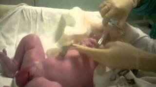 NORMAL DOĞUM ERKEK BEBEK ( Parto normal ele bebe )