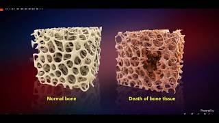 Avascular Necrosis (AVN) & Treatment Options for AVN - Patient Education Video.