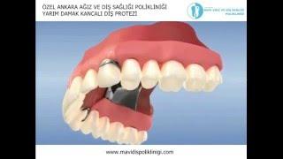 Yarım Damak Kancalı Diş Protezi