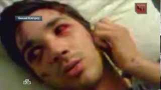 Студента избили до полусмерти за отказ оплатить чужой счет: видео
