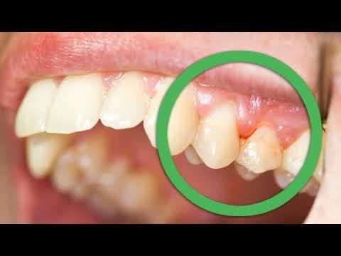 Гноится зуб и болит